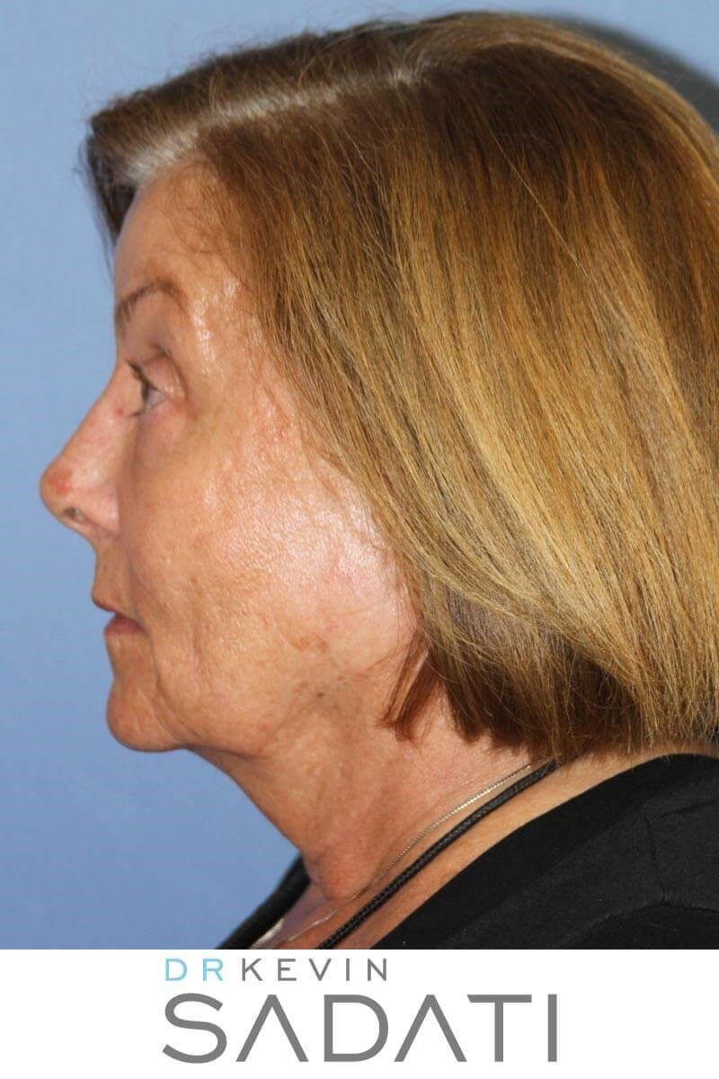 Long beach Facelift Procedure Before