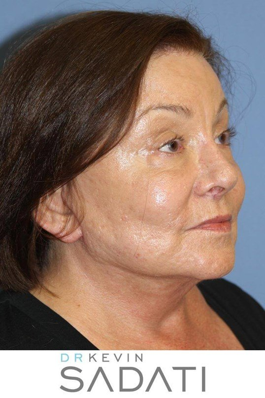 Long beach Facelift Procedure After