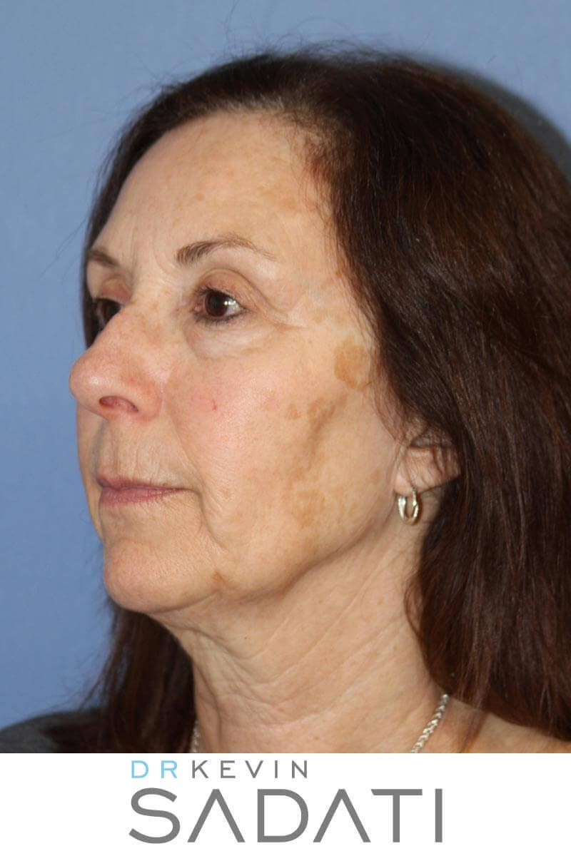 Orange County Facelift Before