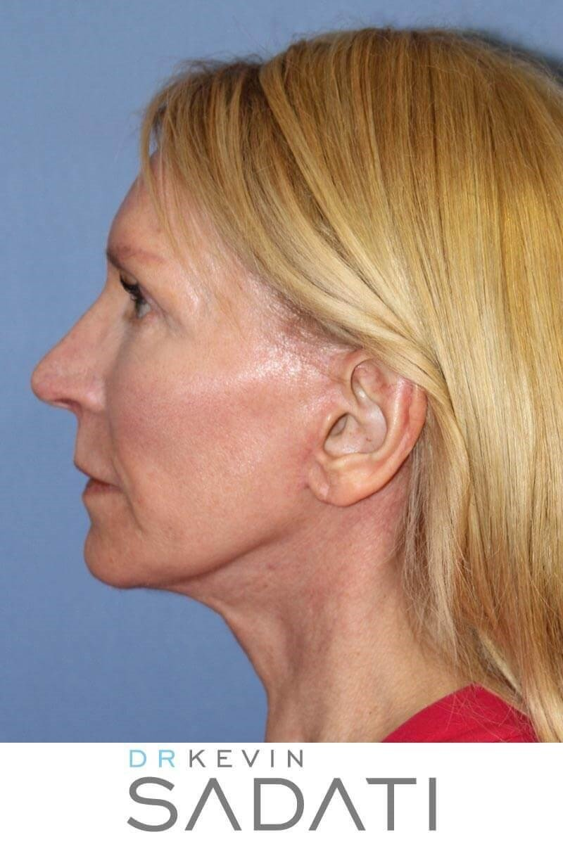 Lower Facelift After