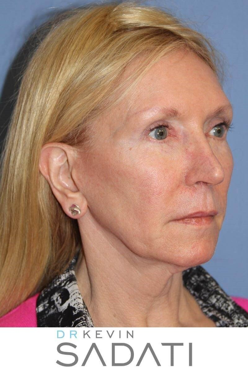 Lower Facelift Before