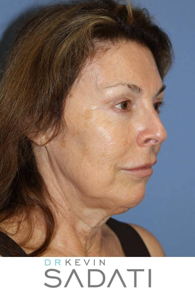 Female Facelift Results Before