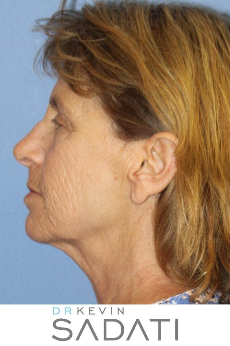 Natural Facelift Results Before