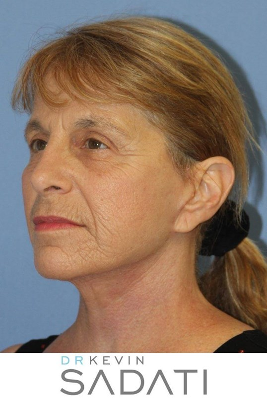 Natural Facelift Results After