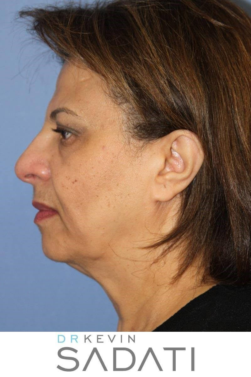 Facelift and Eyelid Surgery Before