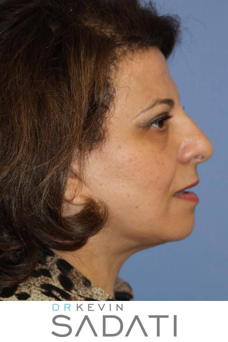 Facelift and Eyelid Surgery After