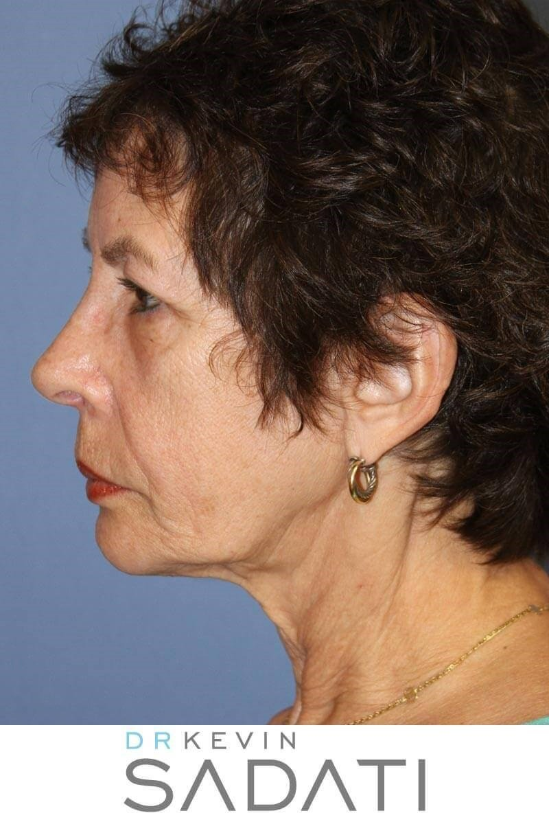 Facelift with Fat Grafting Before