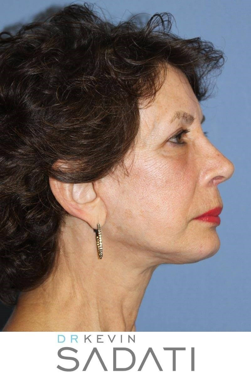 Facelift with Fat Grafting After