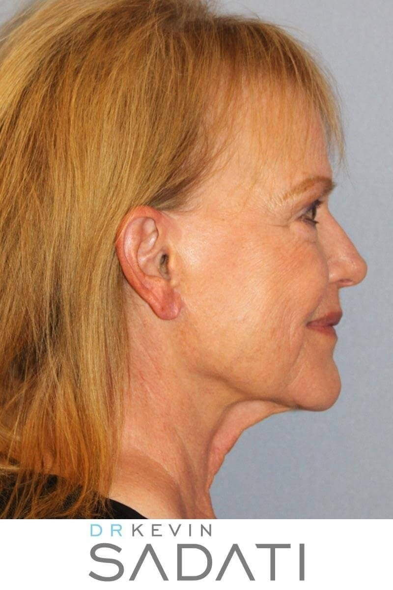 Revision Facelift Before