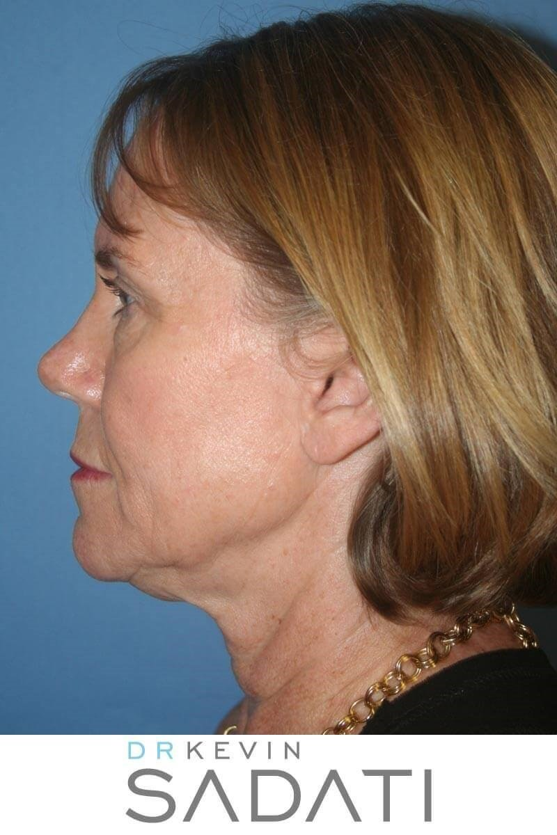 Facelift Before & After Photos Before