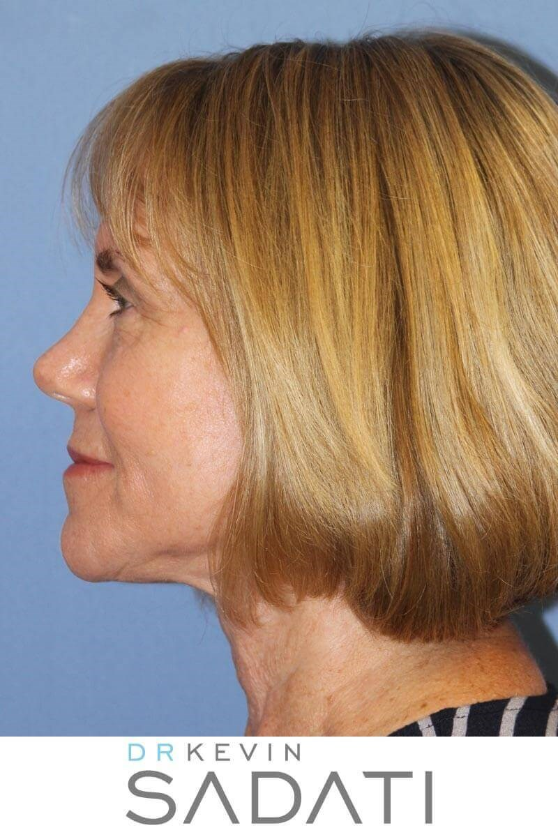 Facelift Before & After Photos After