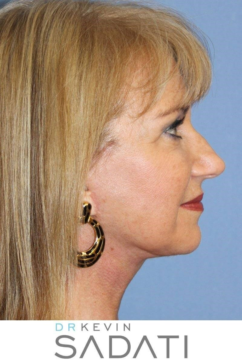 Facelift Surgery Orange County After