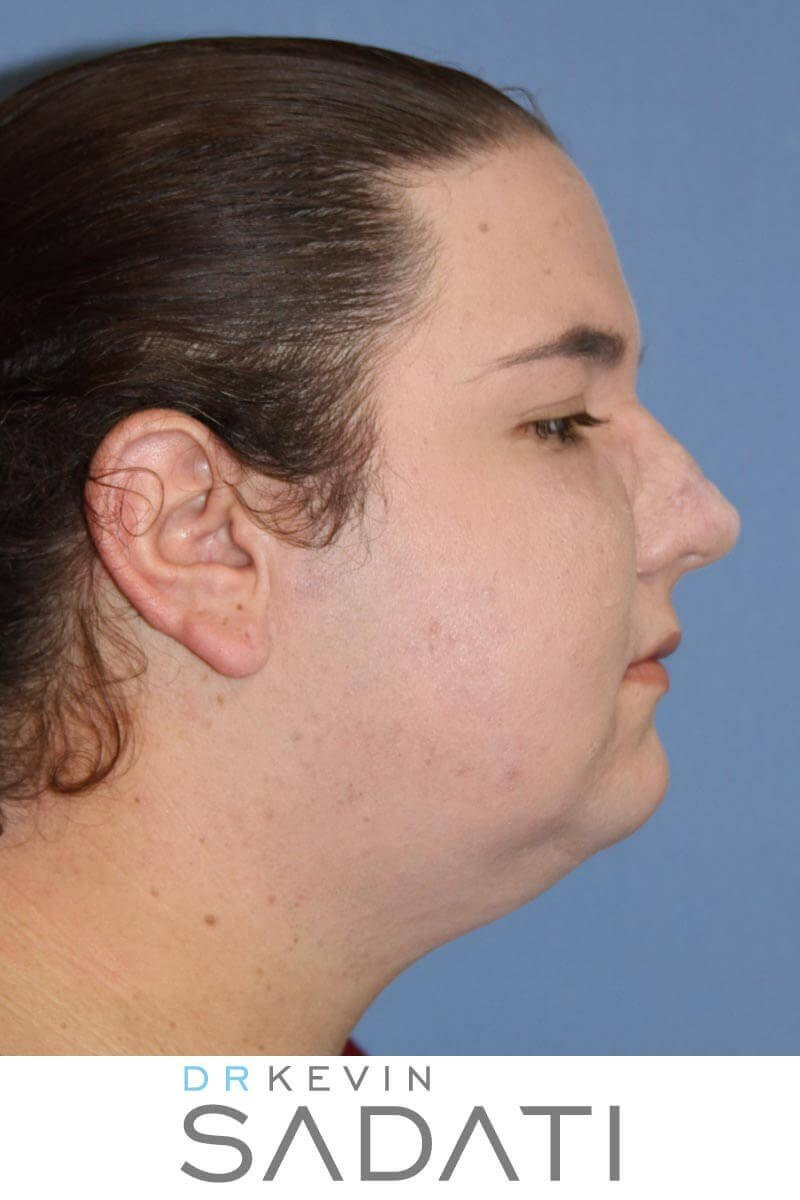 Rhinophyma - Before and After After