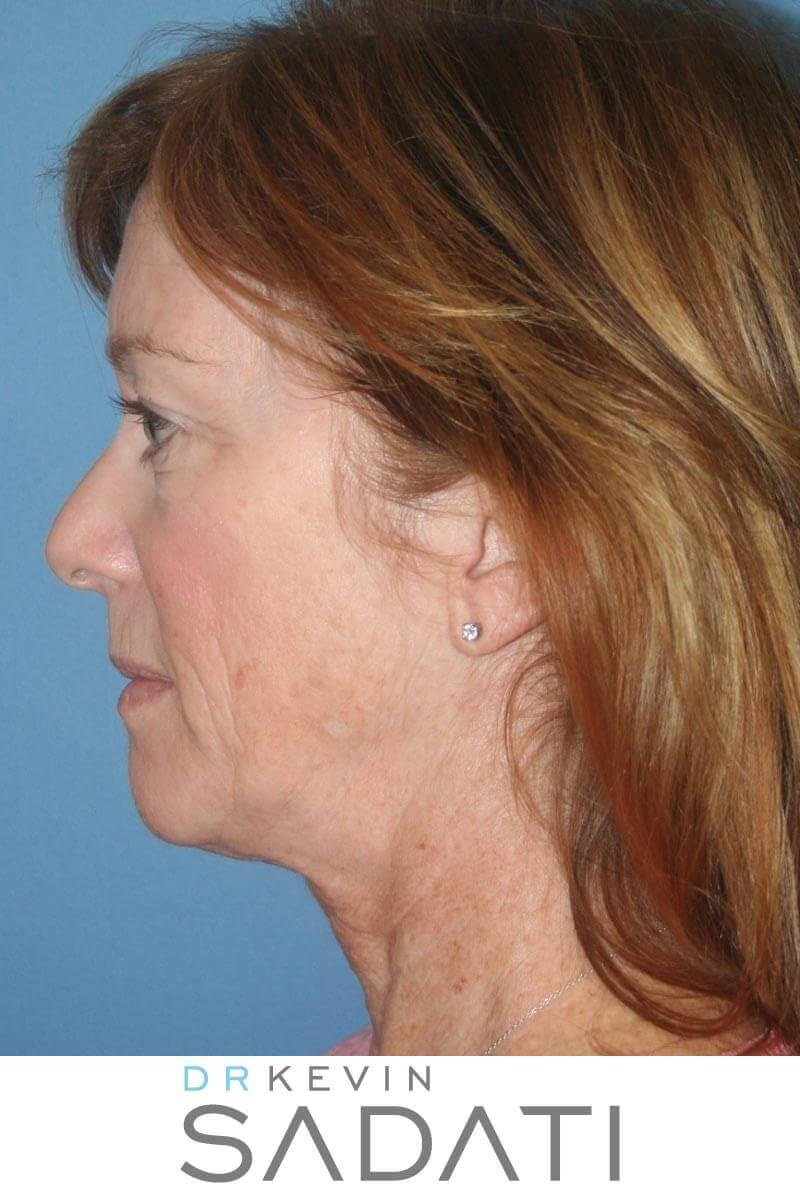 Neck Lift Before & After Before