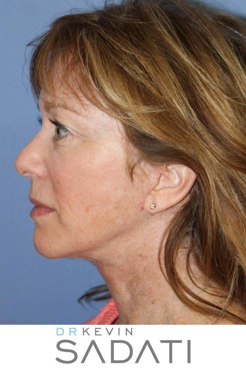 Neck Lift Before & After After