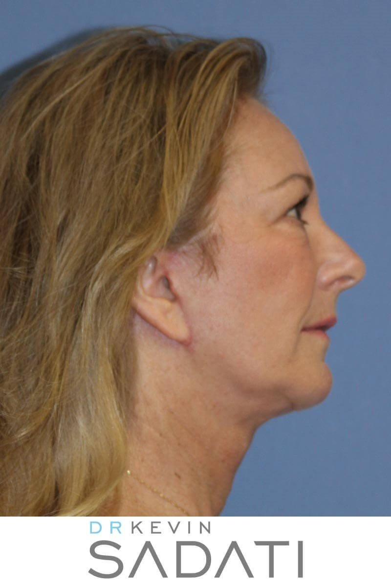 Facial Fat Grafting After