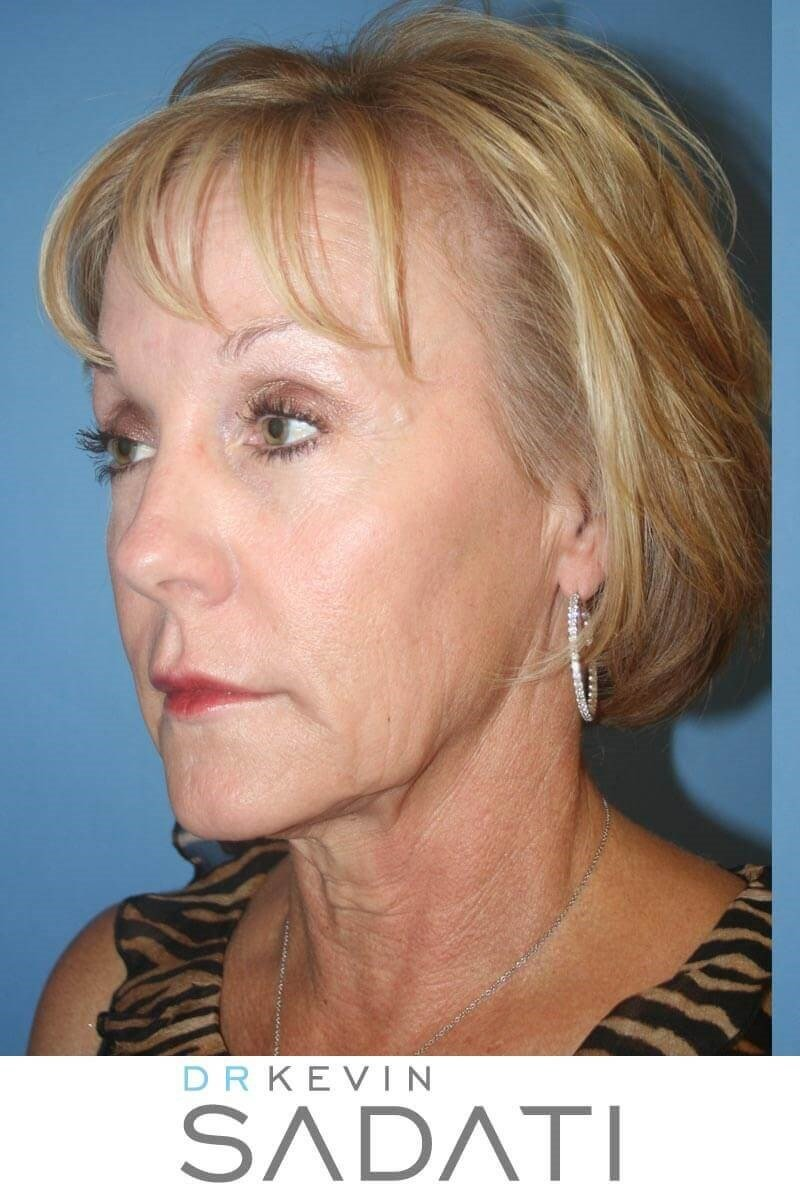 Lower Face and Neck Lift Before