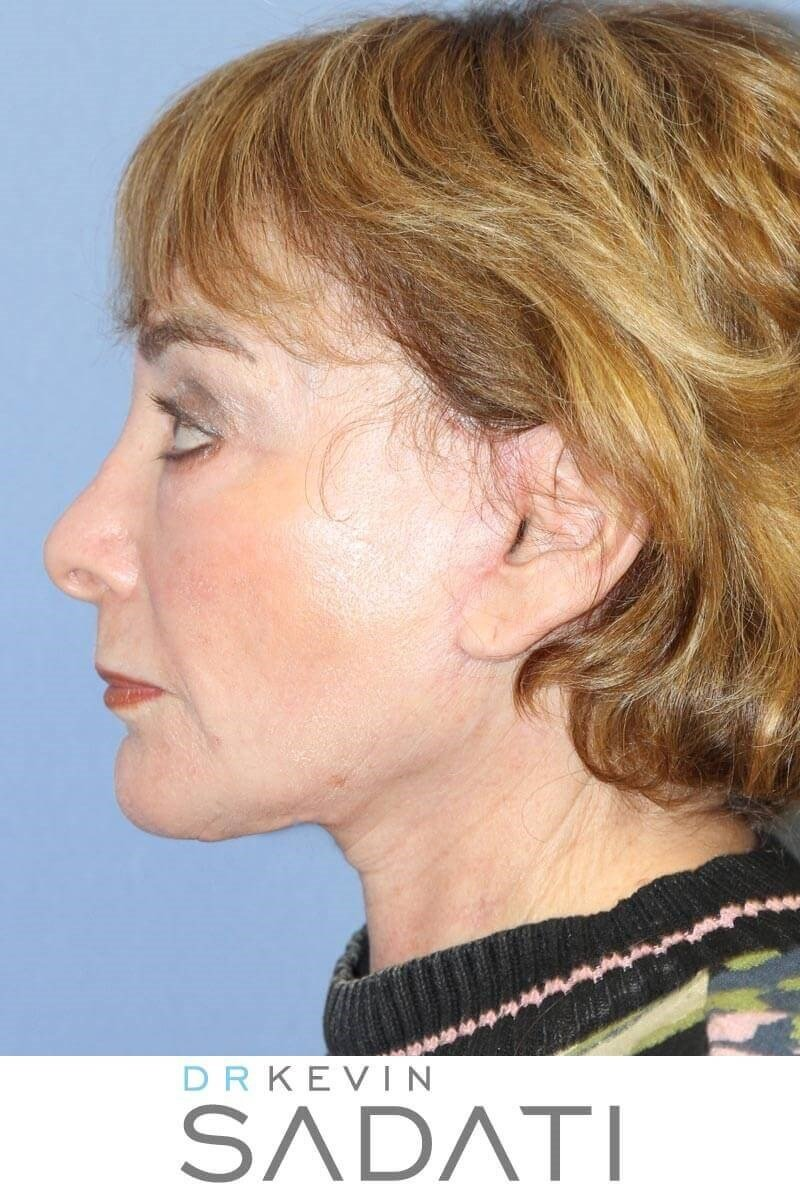Female Facelift Results After