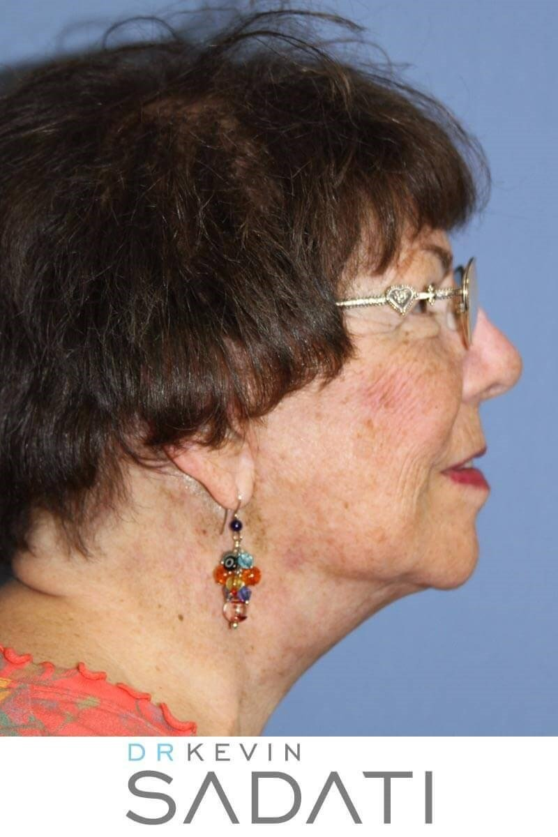 Face and Neck Lift After