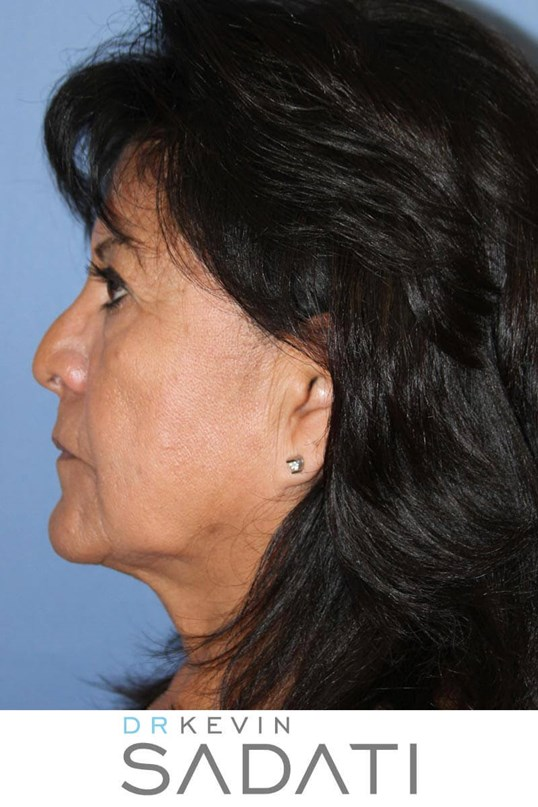 Facelift & Facial Fat Grafting Before