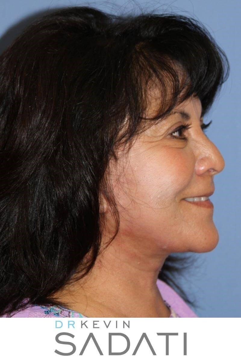Facelift & Facial Fat Grafting After