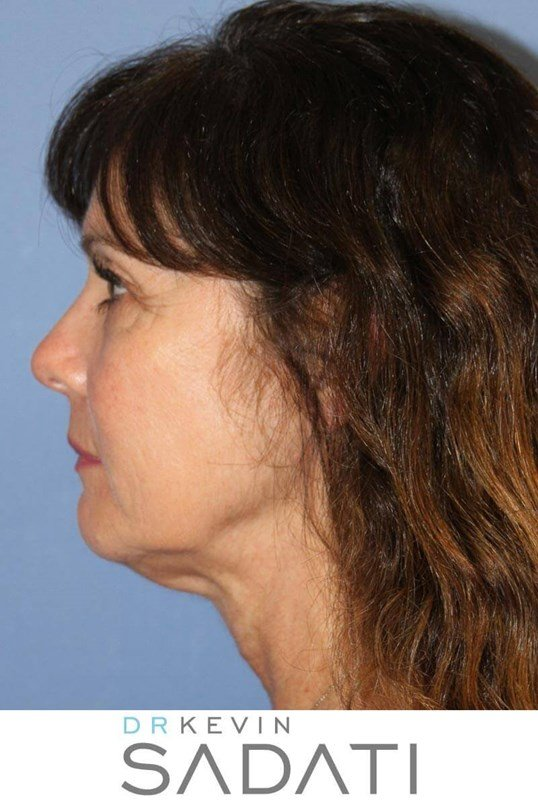 Facelift and Laser Resurfacing Before