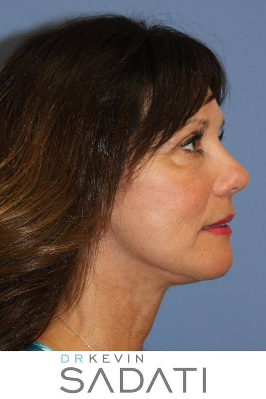 Facelift and Laser Resurfacing After