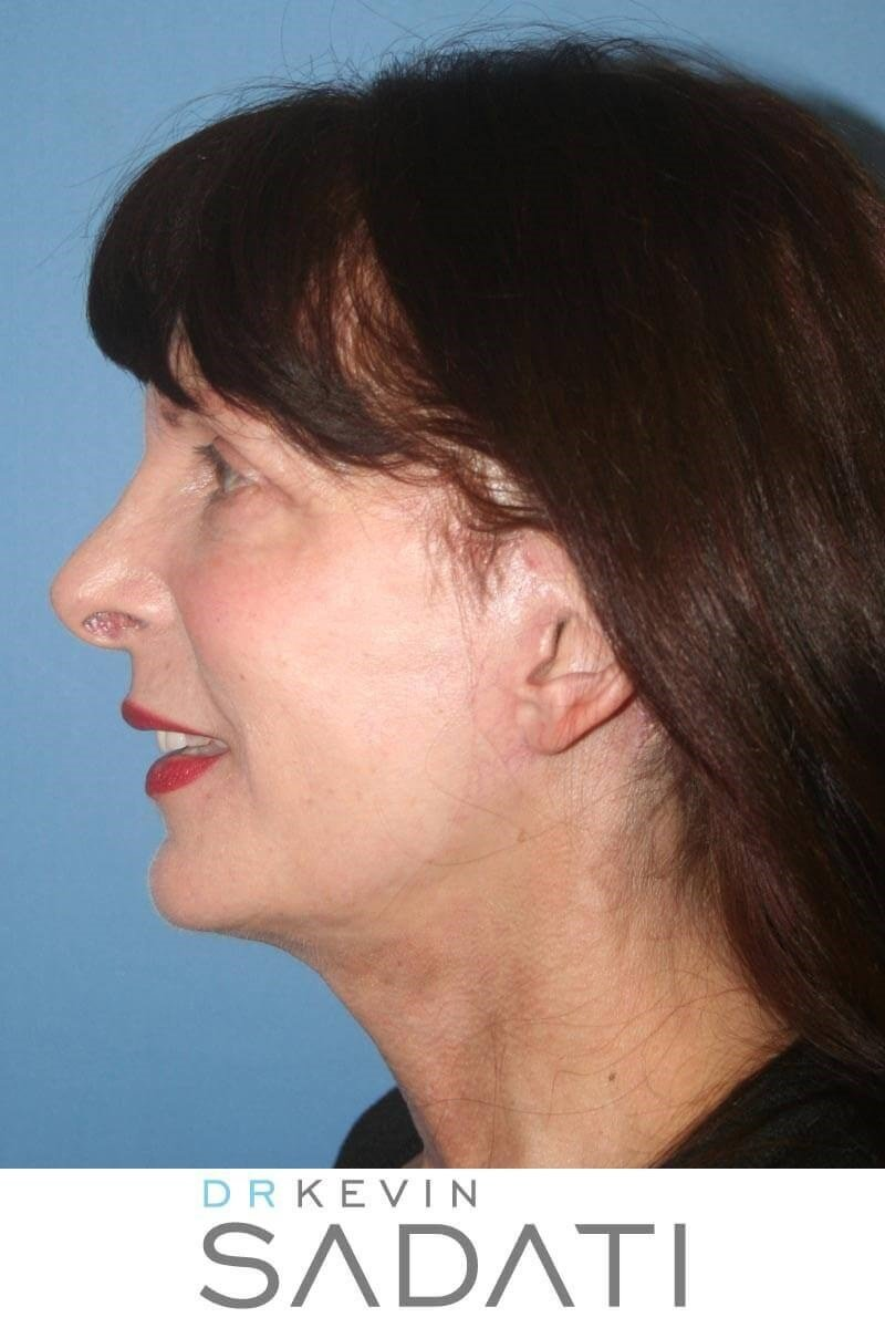 Facelift & Neck Lift Surgery After