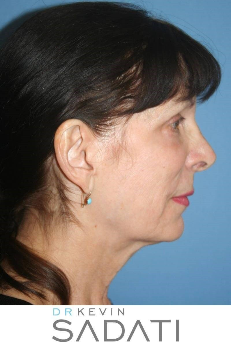 Facelift & Neck Lift Surgery Before