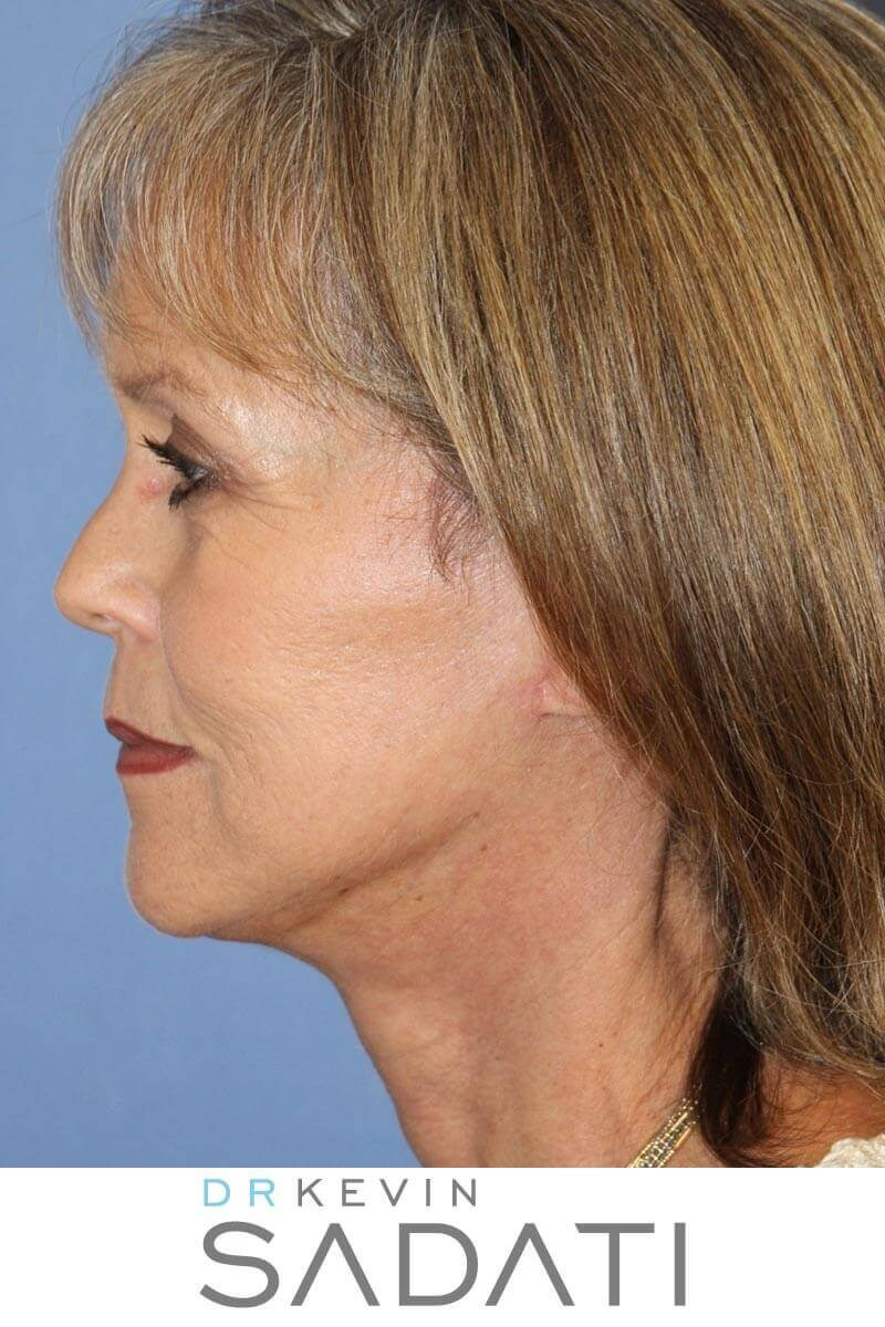Natural Facelift Procedure After