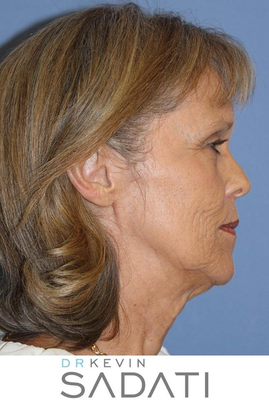 Natural Facelift Procedure Before