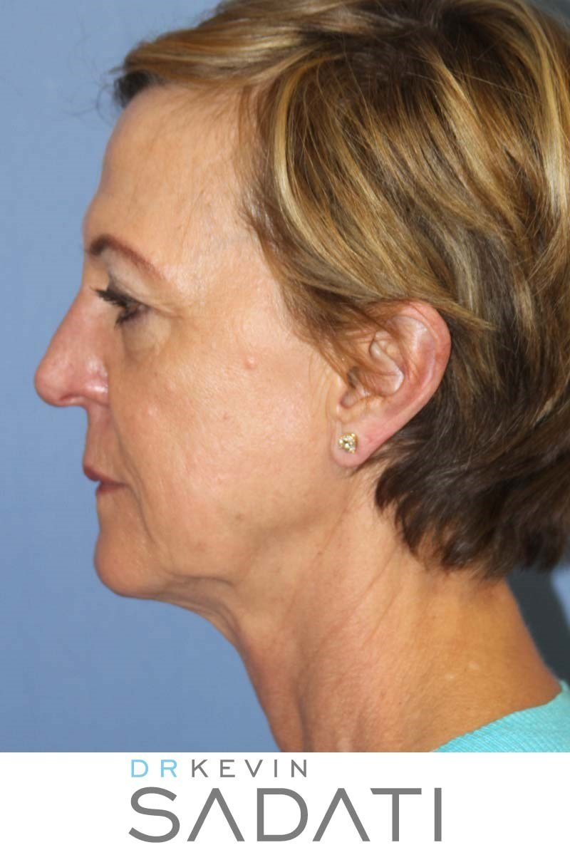 Facial Rejuvenation Before