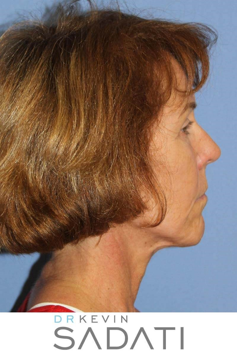 Face and Neck Lift Procedure Before