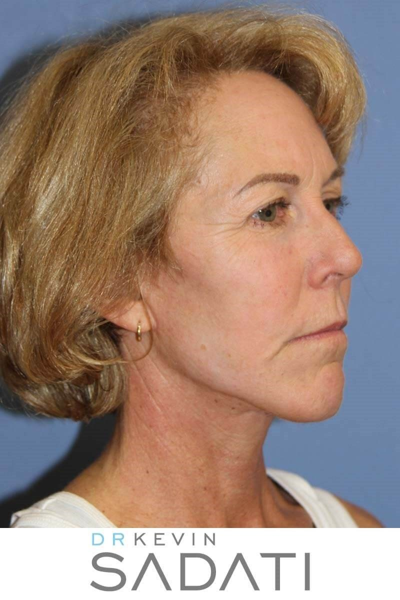 Face and Neck Lift Procedure After