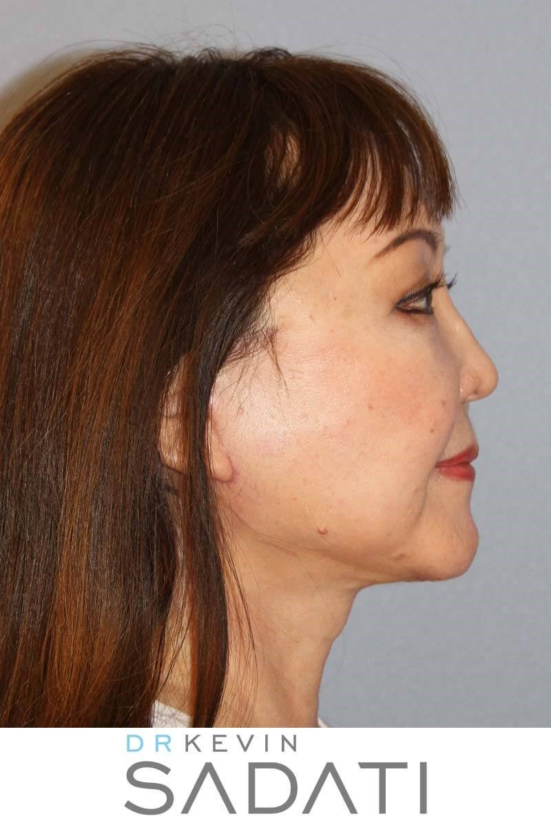Orange County Facelift After