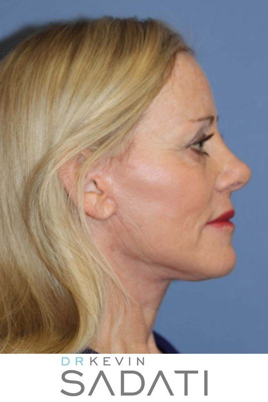 Facelift in Orange County After
