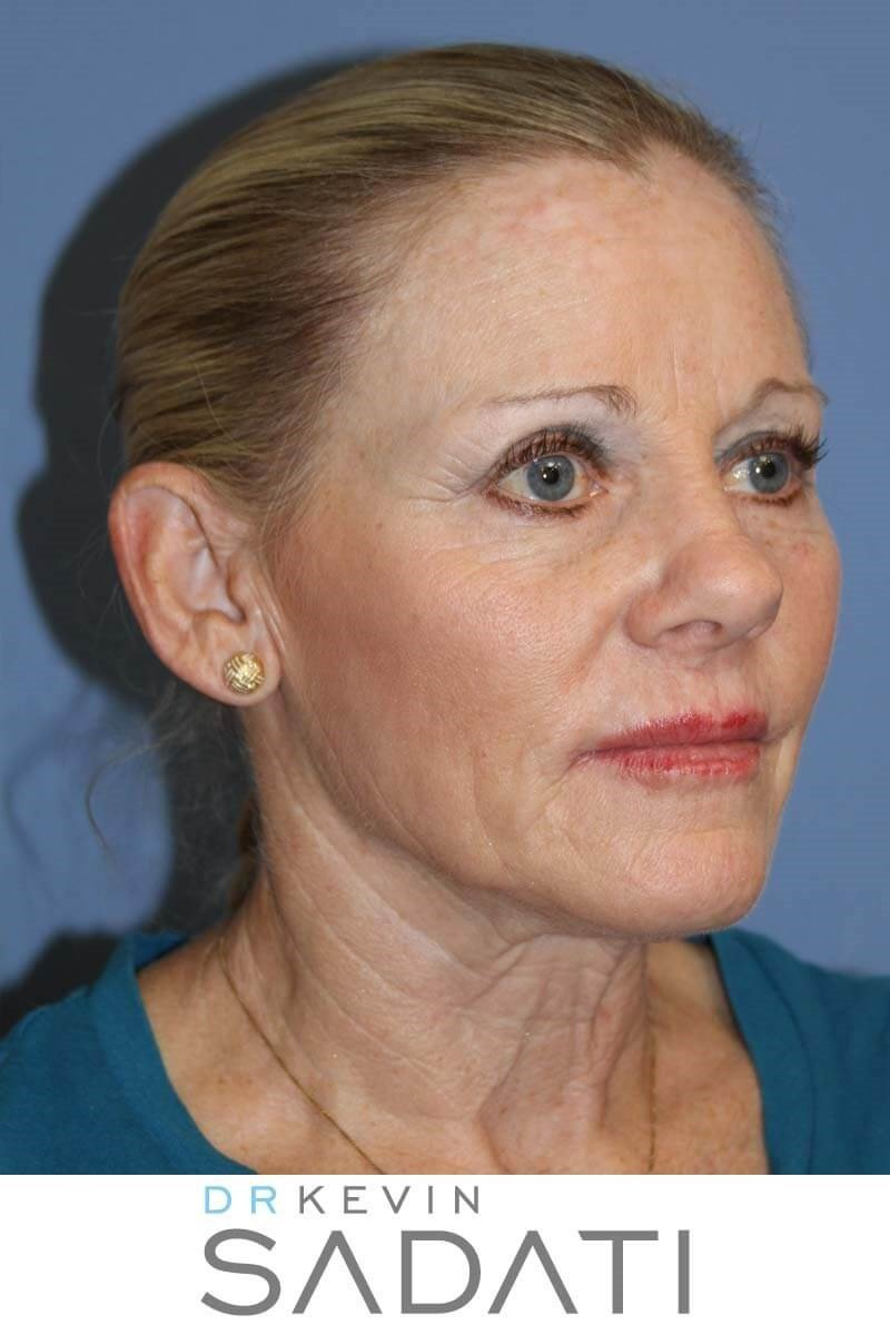 Facelift in Orange County Before