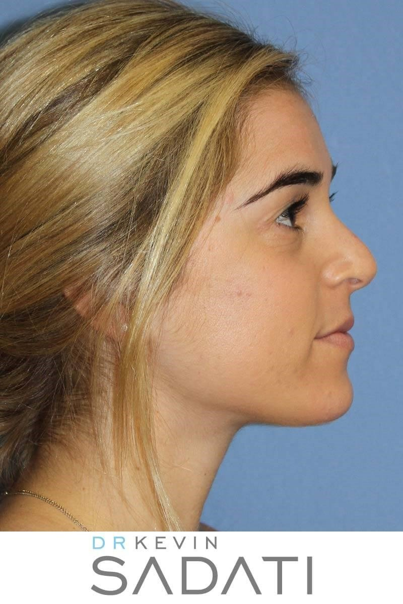 Septorhinoplasty Orange County Before