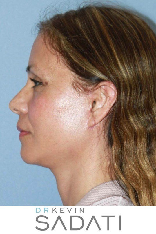 Facelift with Quad Bleph After