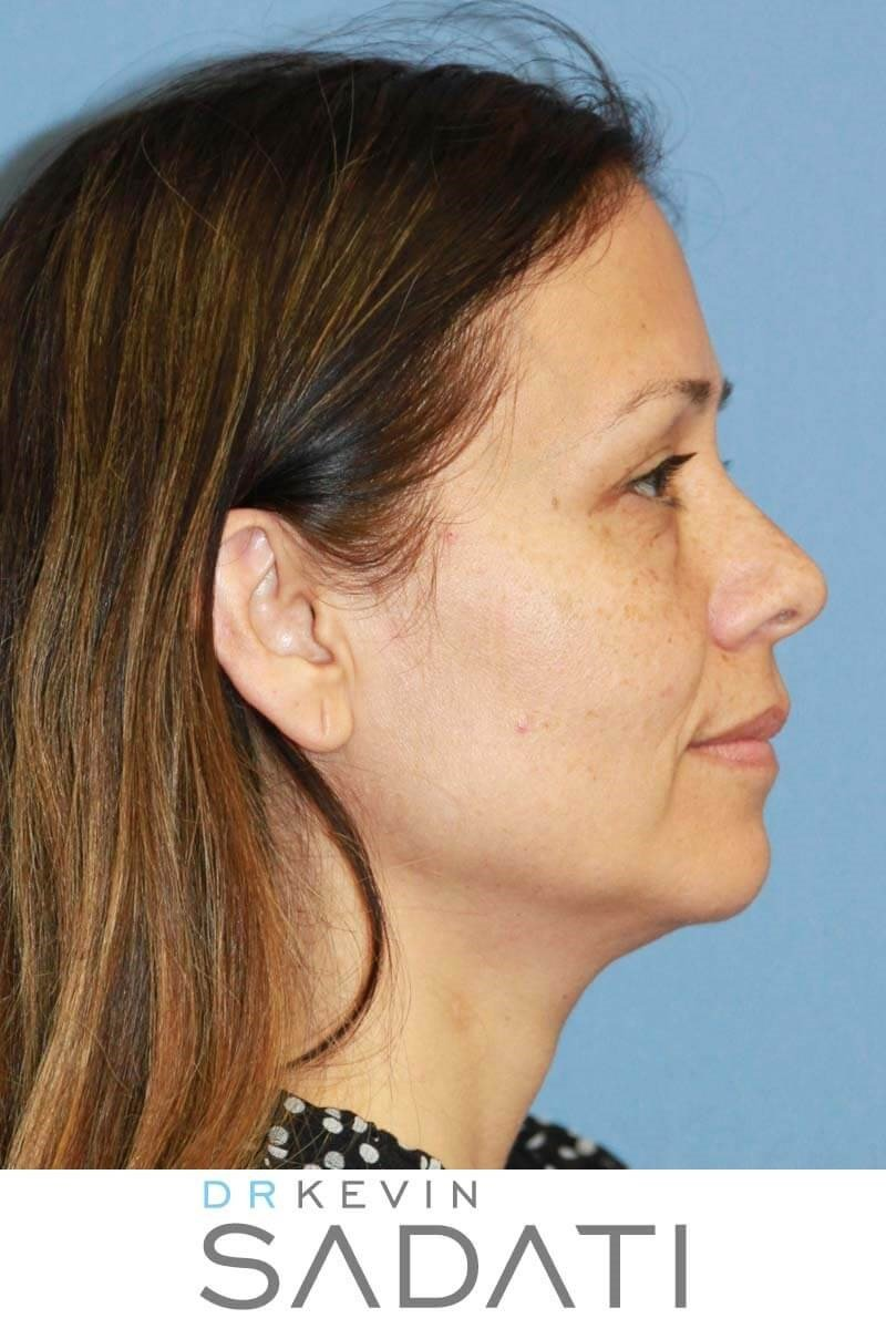 Facelift with Quad Bleph Before
