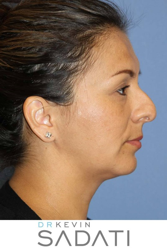 Septorhinoplasty Procedure Before