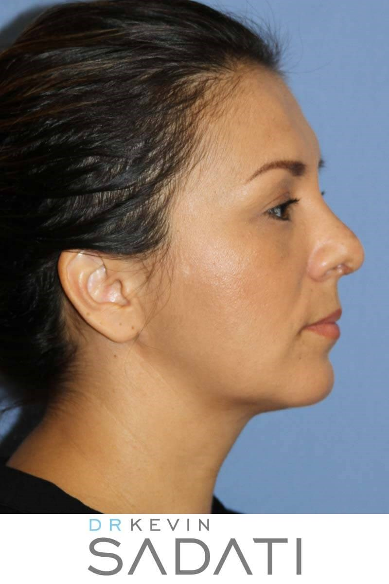 Septorhinoplasty Procedure After