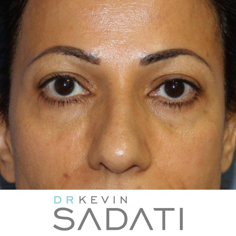 Eyelid Surgery - Front View Before