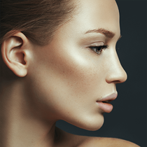 Nonsurgical Rhinoplasty*