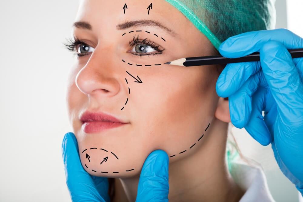 Face Liposuction