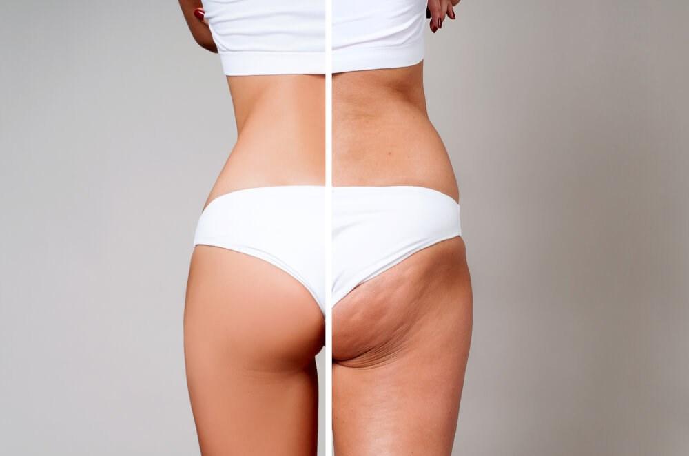 Glute Cellulite Comparison Pho