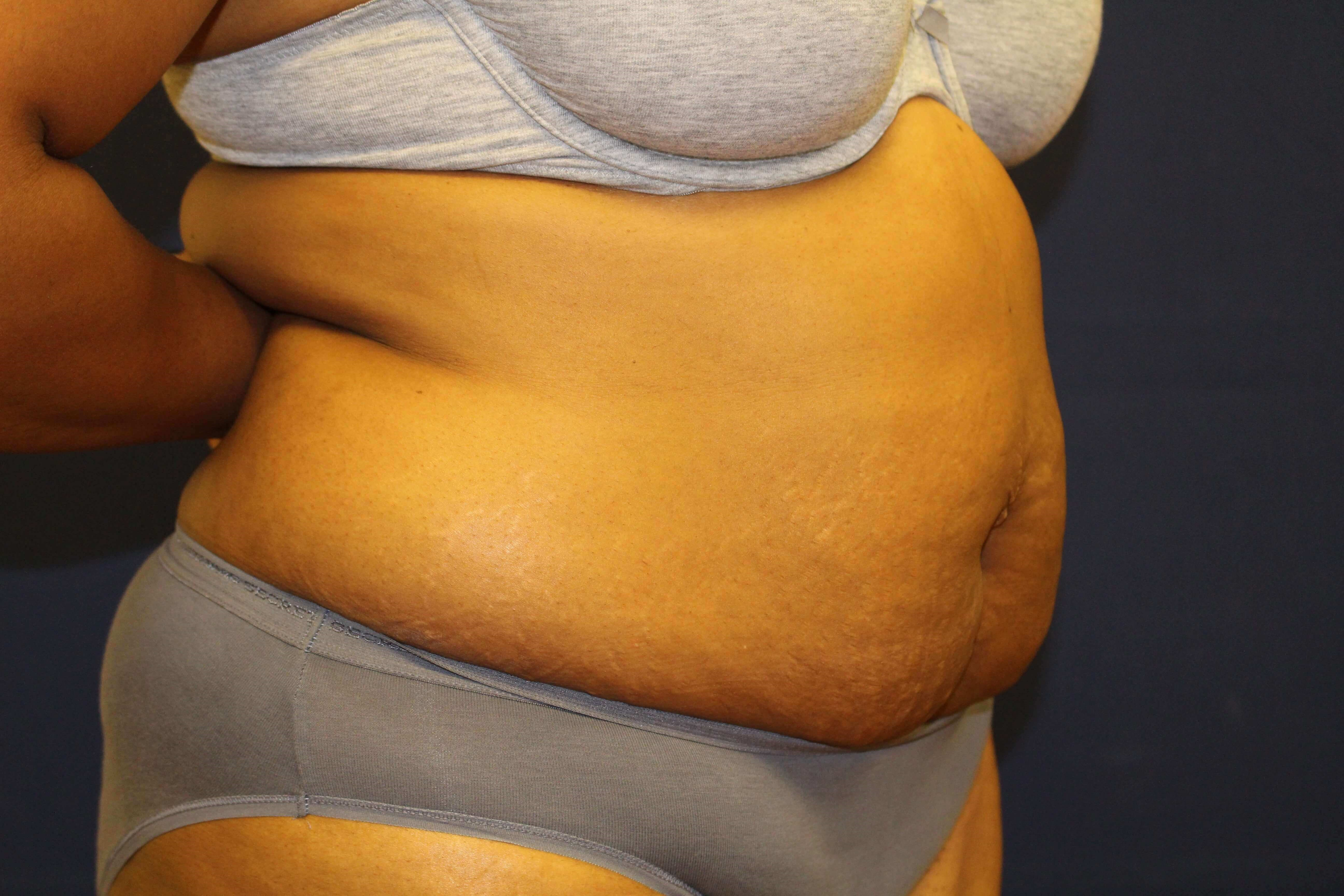 Lipoabdominoplasty2 Before