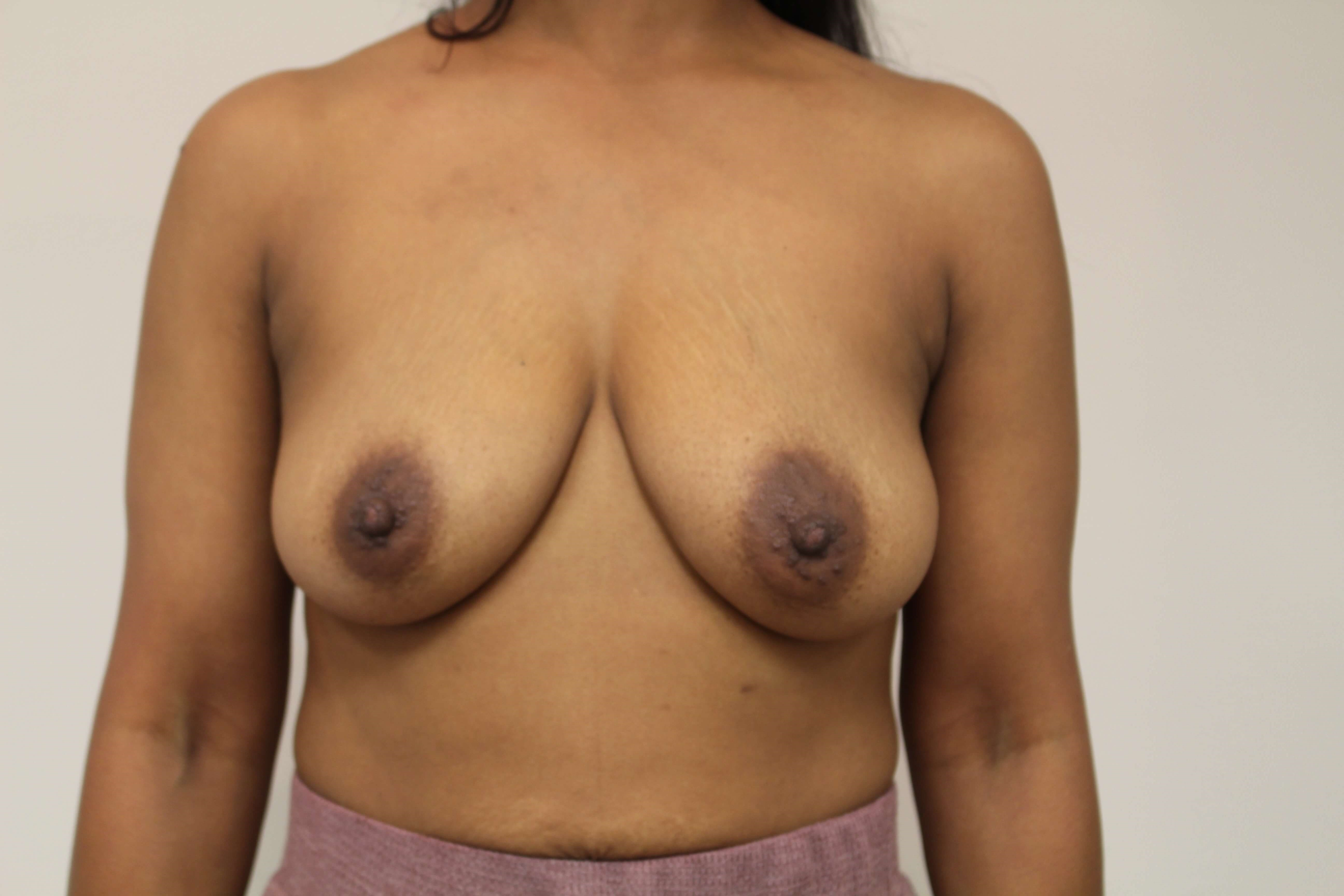 Breast Augmentation Anterior Before