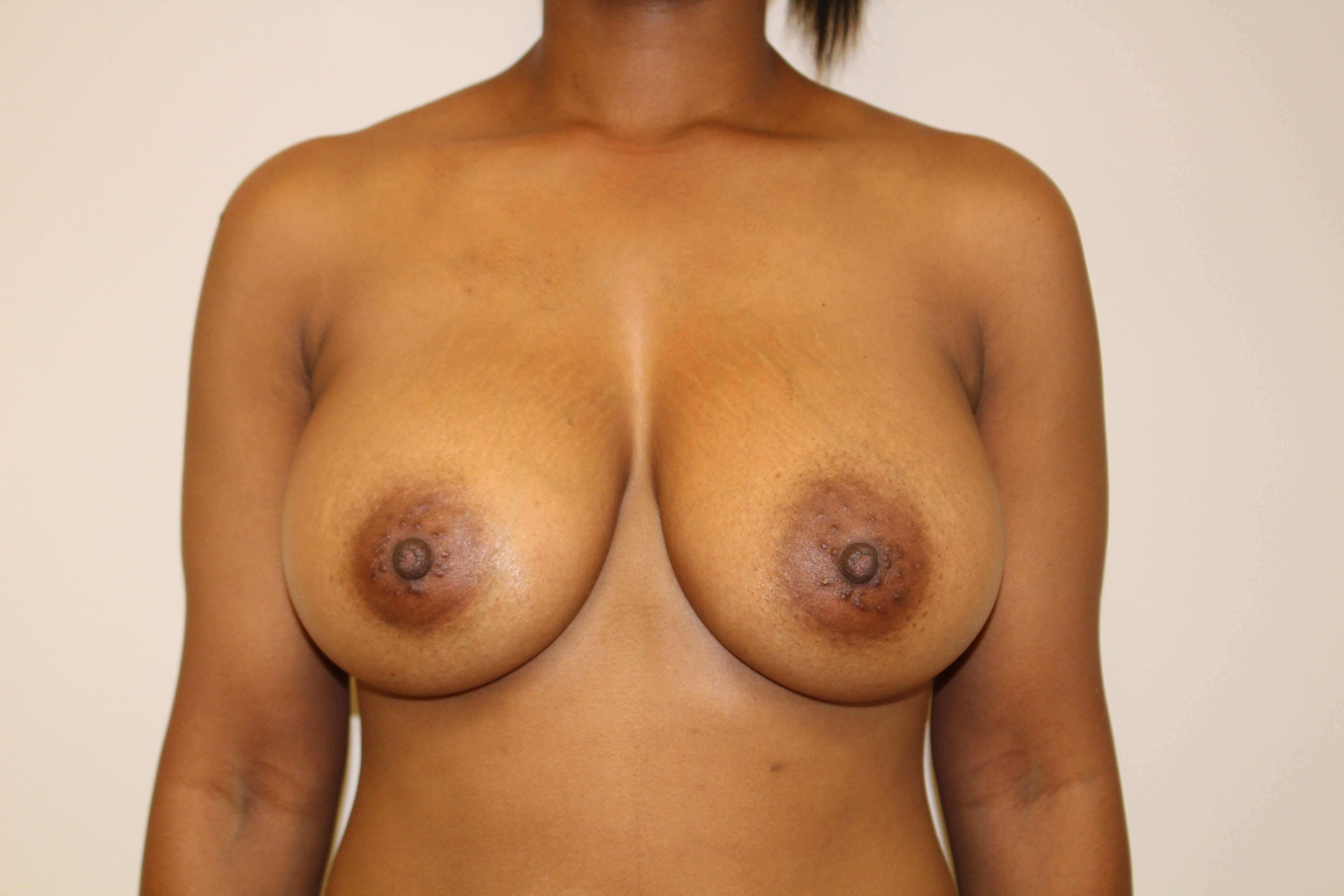 Breast Augmentation Anterior After