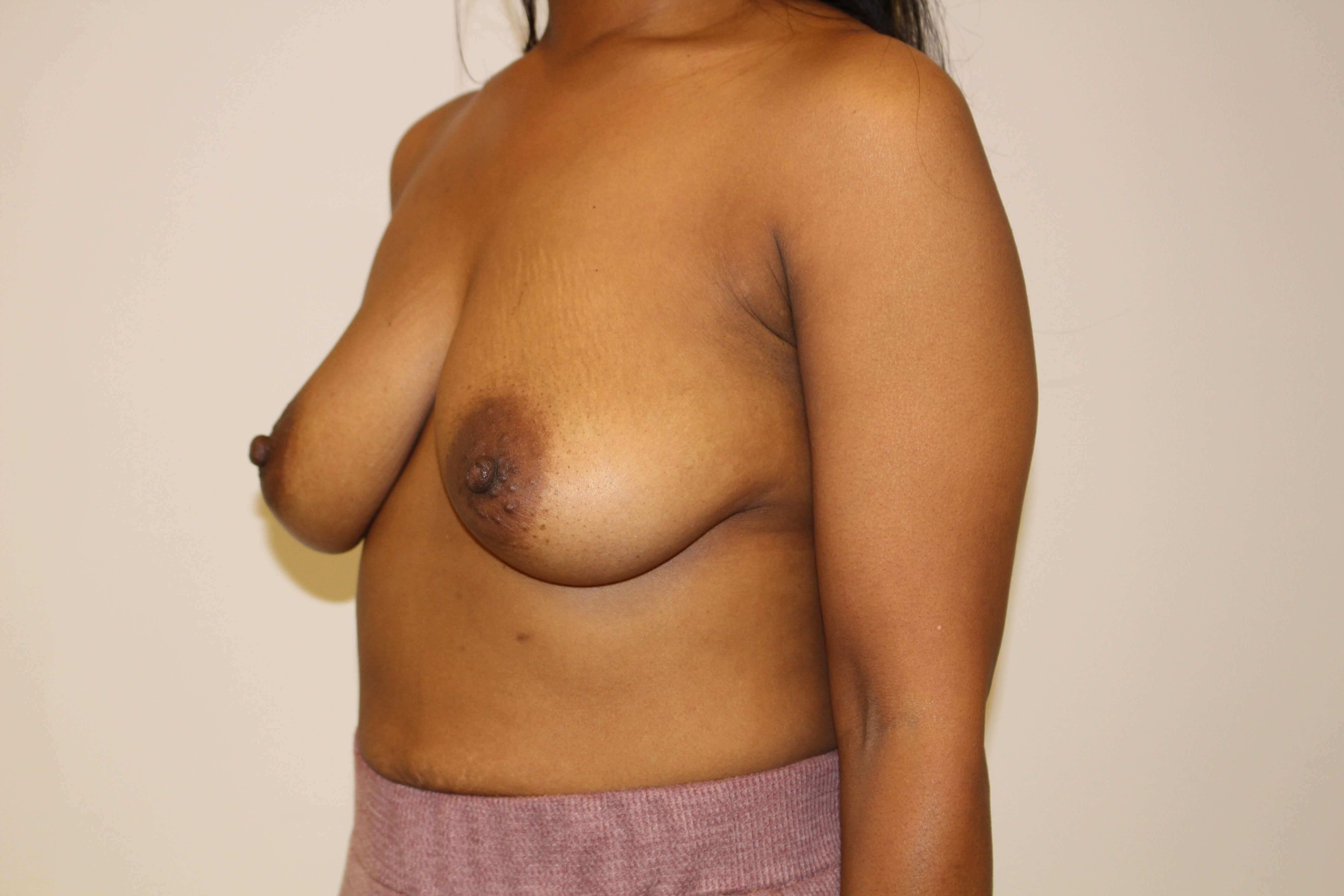 Breast Augmentation 3/4 Before